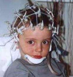 小儿癫痫常见病因分析